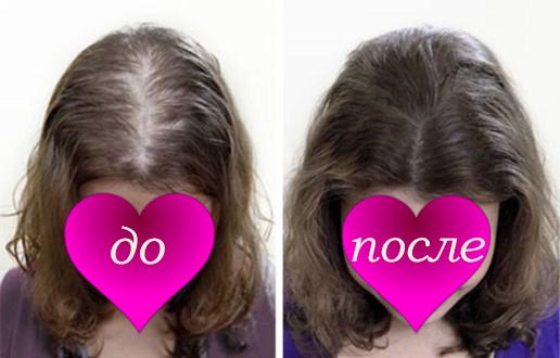 volosy_do_i_posle_vypadeniya_1-516x330