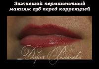 Коррекция татуажа губ