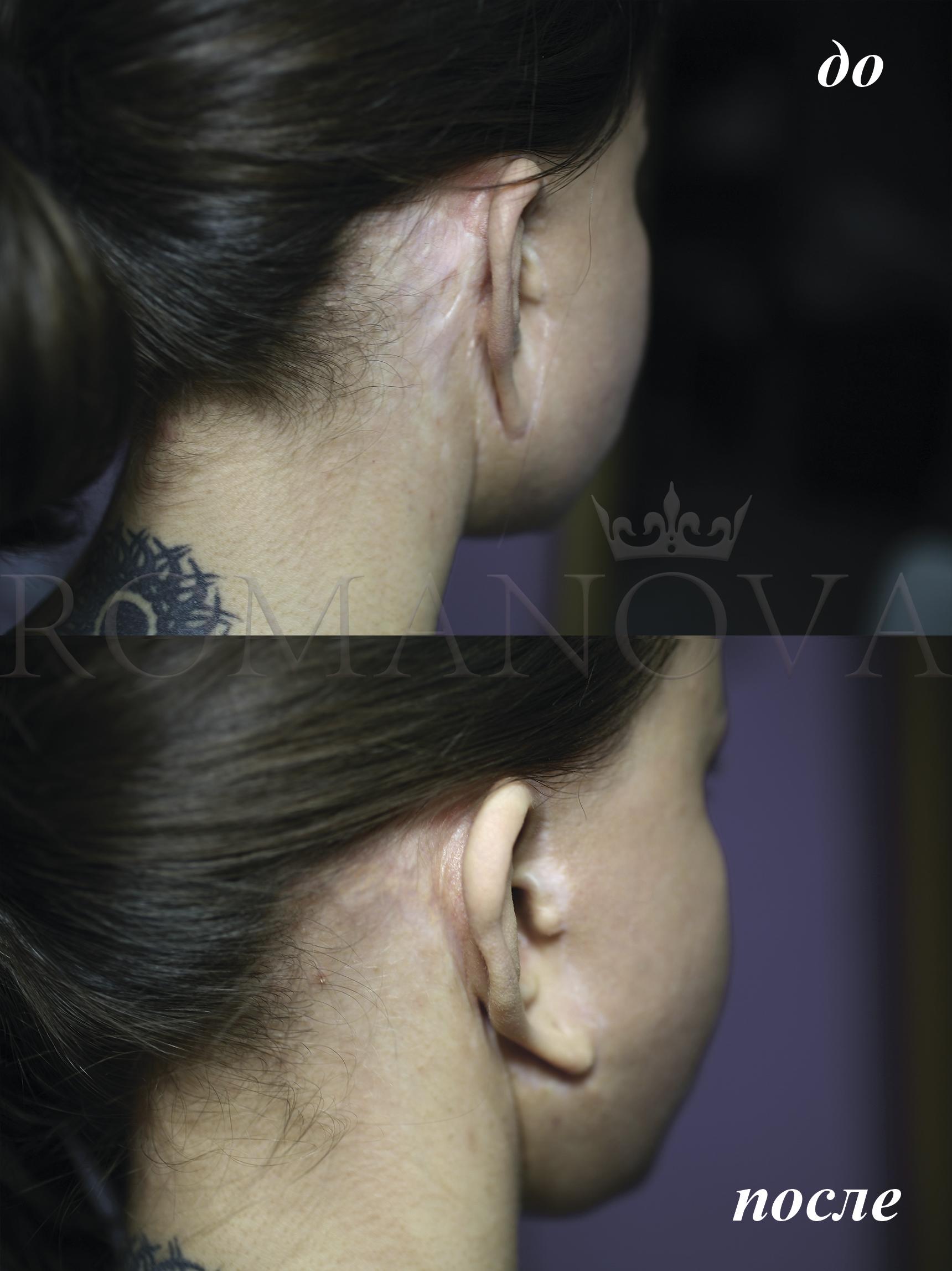 После круговой подтяжки рубцы хорошо перекрываются под то кожи, как и в других местах. Также во время процедуры кожа шлифуется и становится более гладкой